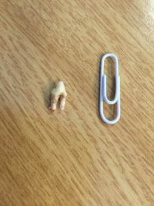 The removed offending tooth